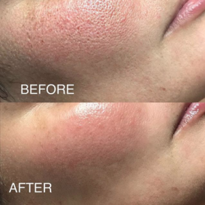 """OxyGeneo 3 in 1 Super Facial"""" Client Treatment Review – Skin n ..."""